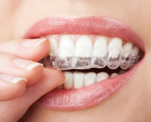 Invisalign aligners in Fort Lauderdale straighten crooked smiles.