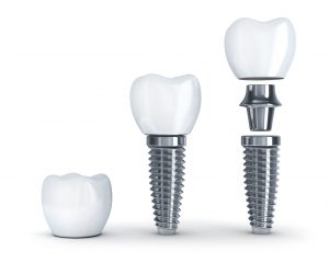 Dental implants in Fort Lauderdale look and feel natural.