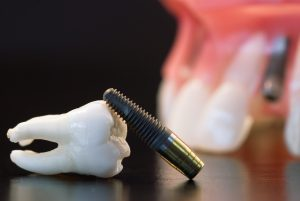 tooth and implant